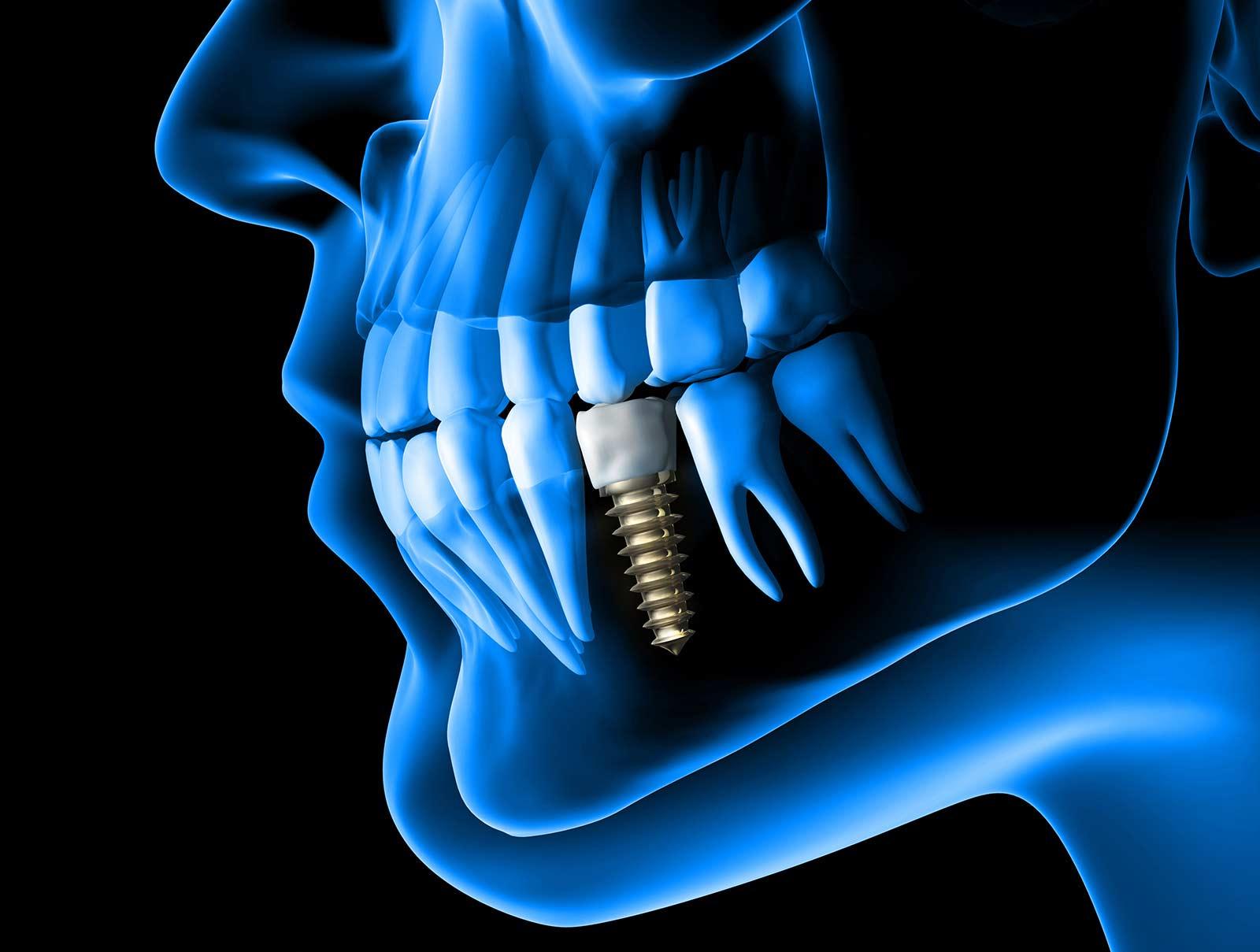 Implantologie BDIZ EDI