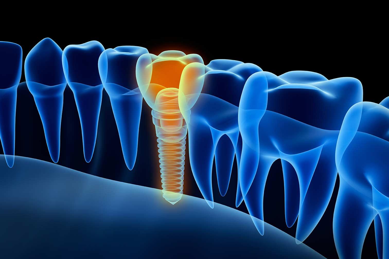 Implantat Röntgen