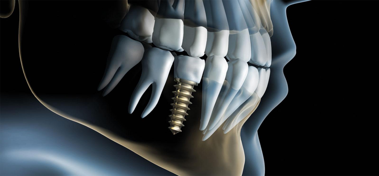 Transparenter Kiefer mit Implantat